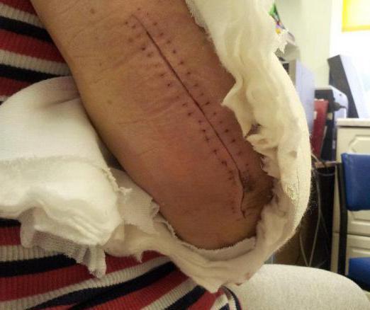 переломы костей локтевого сустава