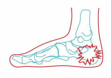 переломы пяточной кости