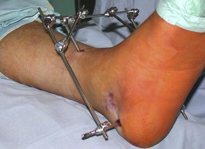 перелом пяточной кости лечение
