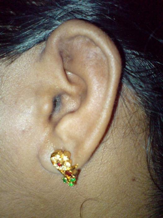 Почему чешется ухо внутри