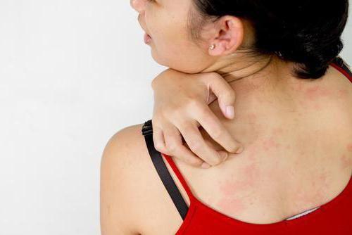 чешется кожа на теле после душа