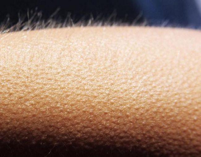 Почему при прослушивании музыки появляются мурашки на коже?