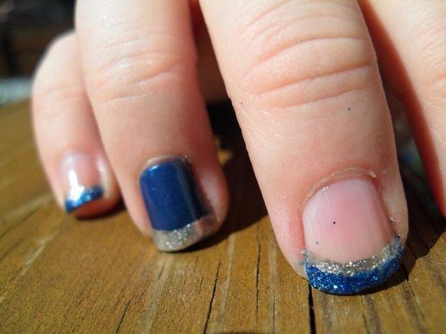 Почему слоятся ногти на руках? Возможные причины проблемы