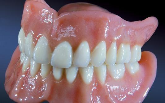 покрывной протез зубов цена