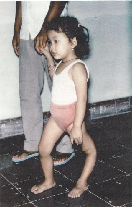 Полиомиелит у детей. Как протекает заболевание