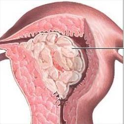 размеры полип эндометрия