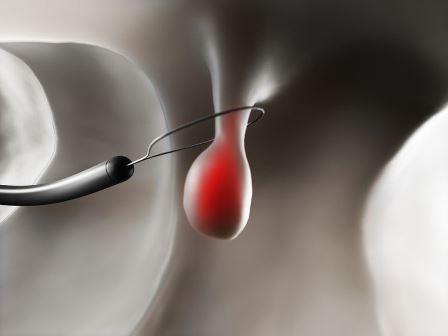 Полипоз эндометрия. Причины