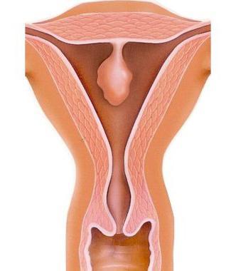Гиперплазия, полипоз эндометрия