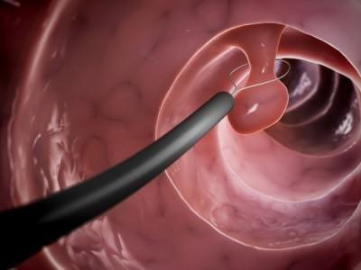 полипы в матке результат нарушения гормонального фона