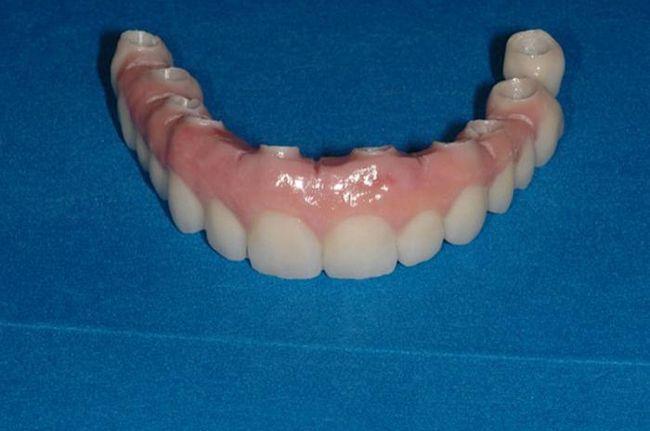 стоматология покрывной протез