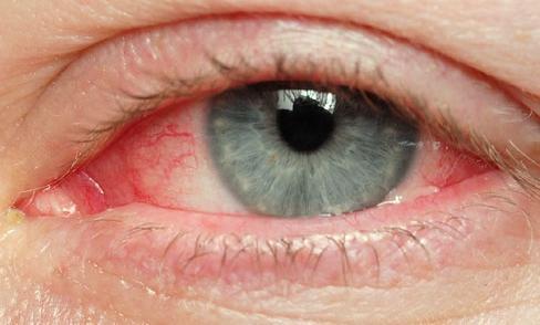 Причина красных глаз. Так ли все безобидно?