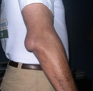 Причины и симптомы бурсита