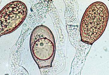 классификация микроорганизмов по типу дыхания