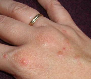 Прыщики на руках – причины появления и лечение