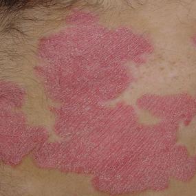 Псориаз заразен или нет - как относиться к человеку с подобными кожными проявлениями