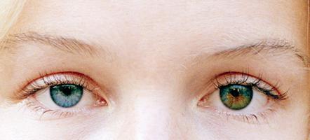 разные глаза у людей