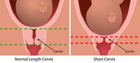 разрыв матки при родах последствия