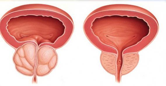 влияние алкоголя на репродуктивную систему