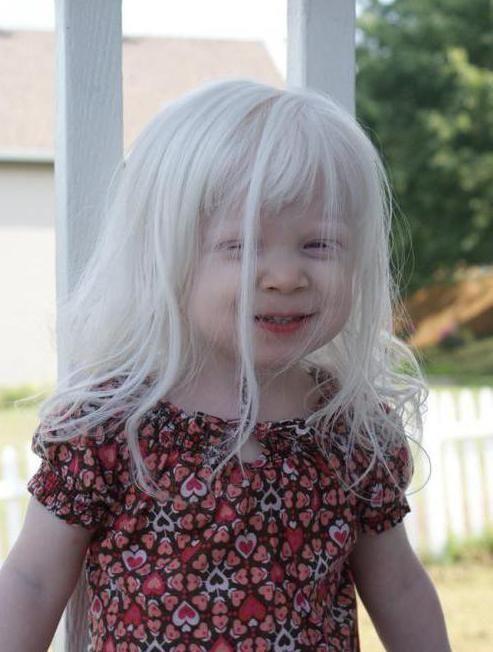 седые волосы у ребенка 6 лет