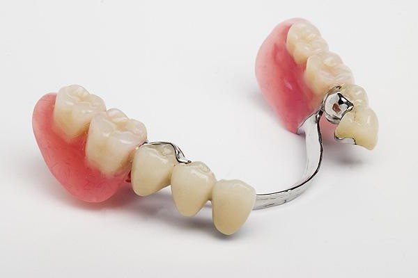 Протезы зубные.