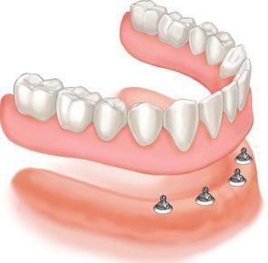 съемные зубные протезы без неба