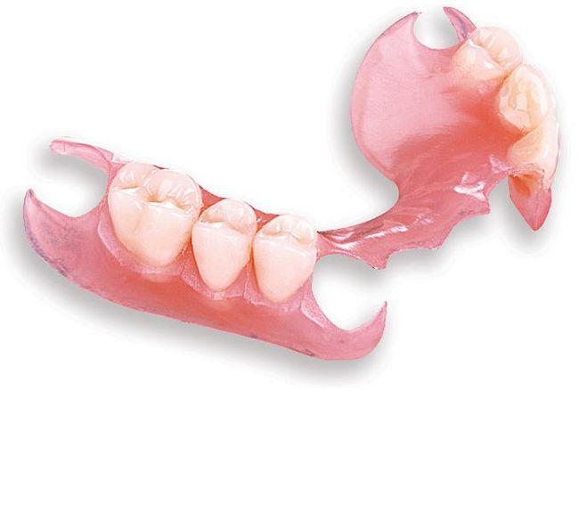 съемные зубные протезы какие лучше