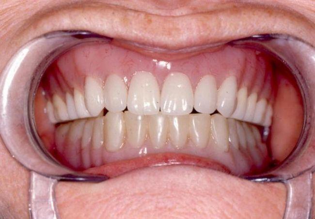 съемные зубные протезы отзывы