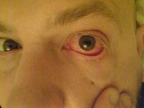 токсоплазмоз симптомы у людей