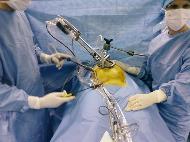 лапроскопическое удаление кисты яичника
