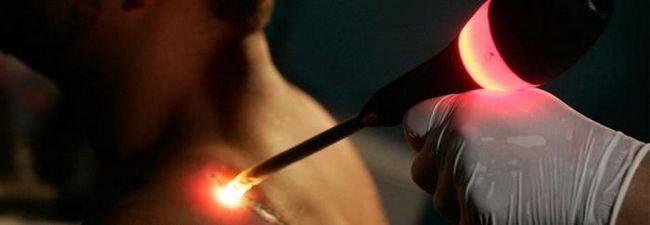 Удаление татуировок с помощью лазера