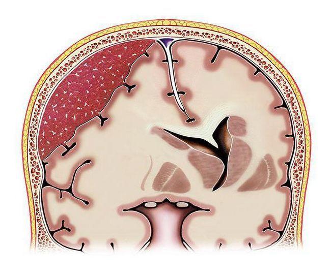 последствия тяжелого ушиба головного мозга