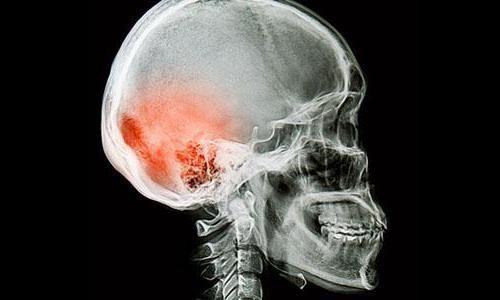 ушиб головного мозга последствия травмы