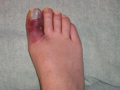 Ушиб пальца на ноге. Лечение