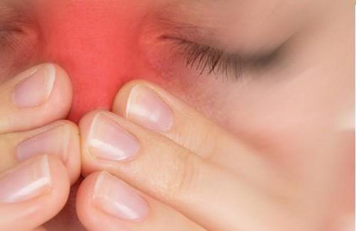 разница между гайморитом и синуситом