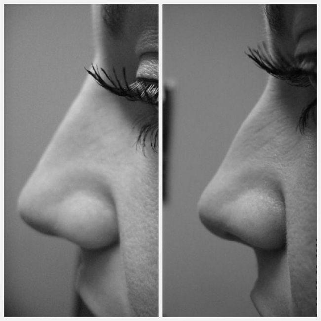 виды форм носа