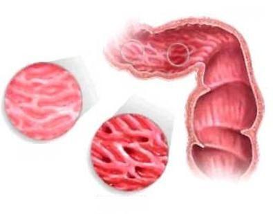 воспаление толстой кишки симптомы лечение