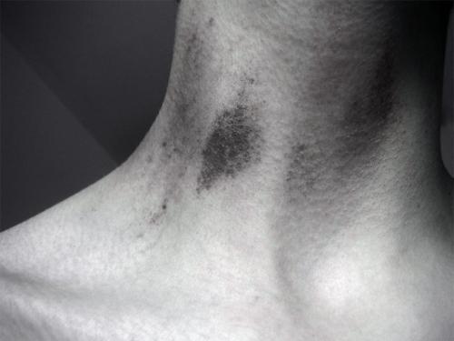 Засос на шею - эротизм в открытом виде