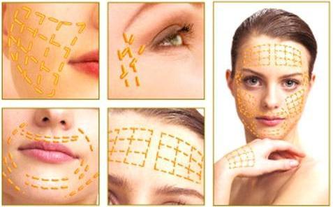 Золотые нити в косметологии - залог вечной молодости
