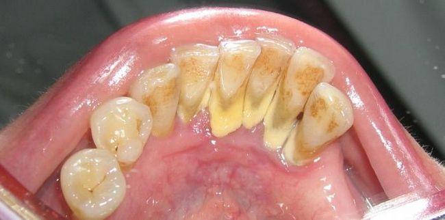 Зубной камень. Удаление и профилактика